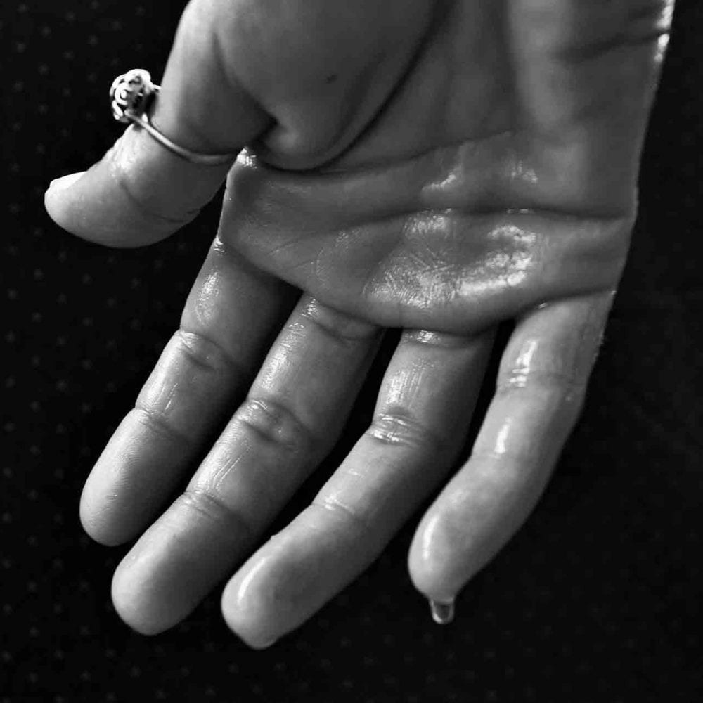 Image of sweating hand for hyperhidrosis and excess sweating treatment with botox blog post