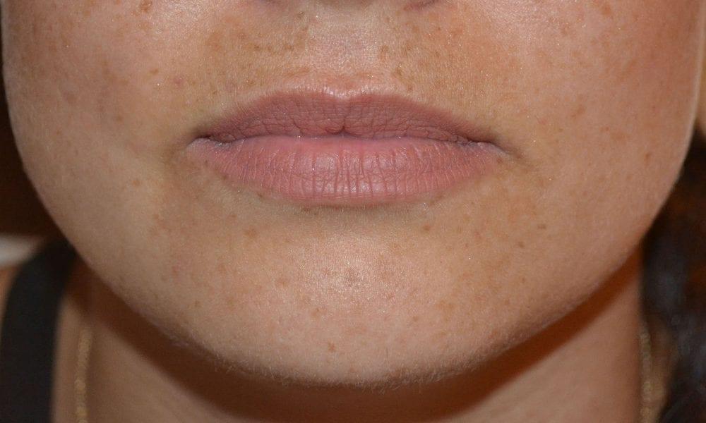 Lip Filler Before