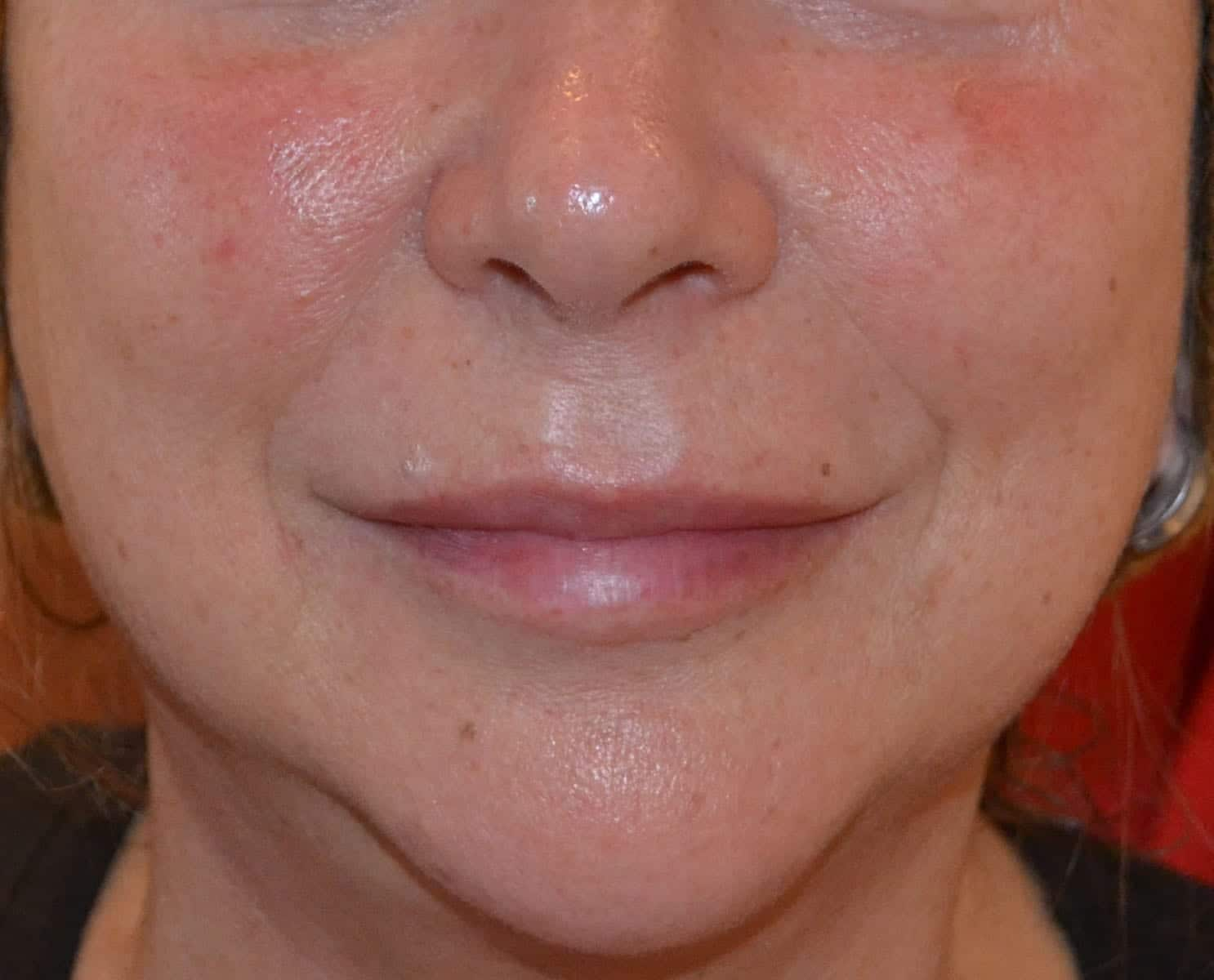 Liquid Facelift After