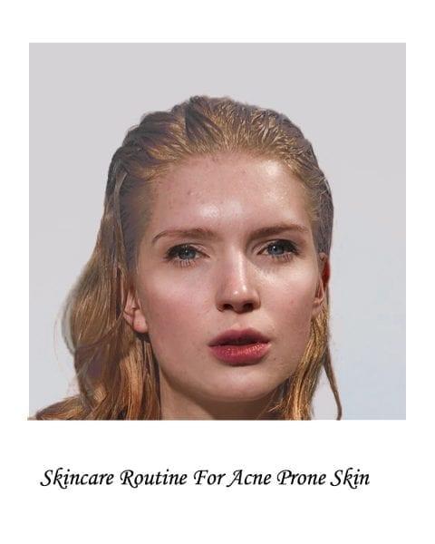 Image of model for acne prone skin skincare routine