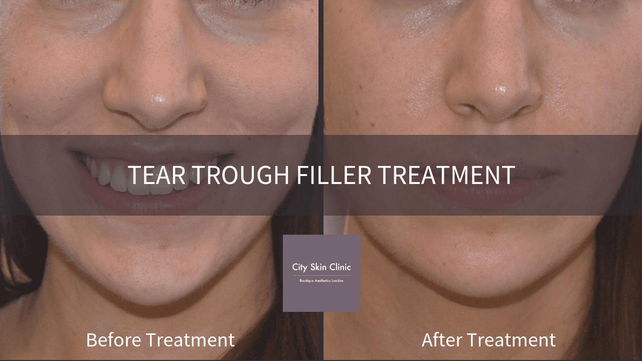 Tear Trough Fillers: Under Eye Fillers Treatment in London