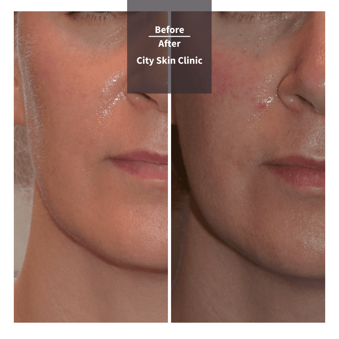 Before and after images for cheek fillers in London