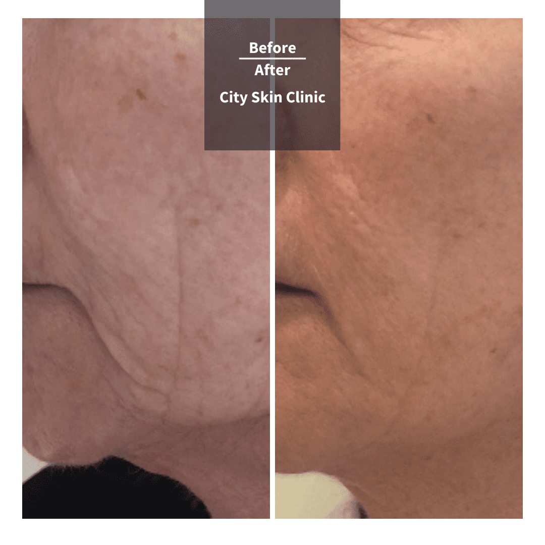 Before and after images for Profhilo treatment in London