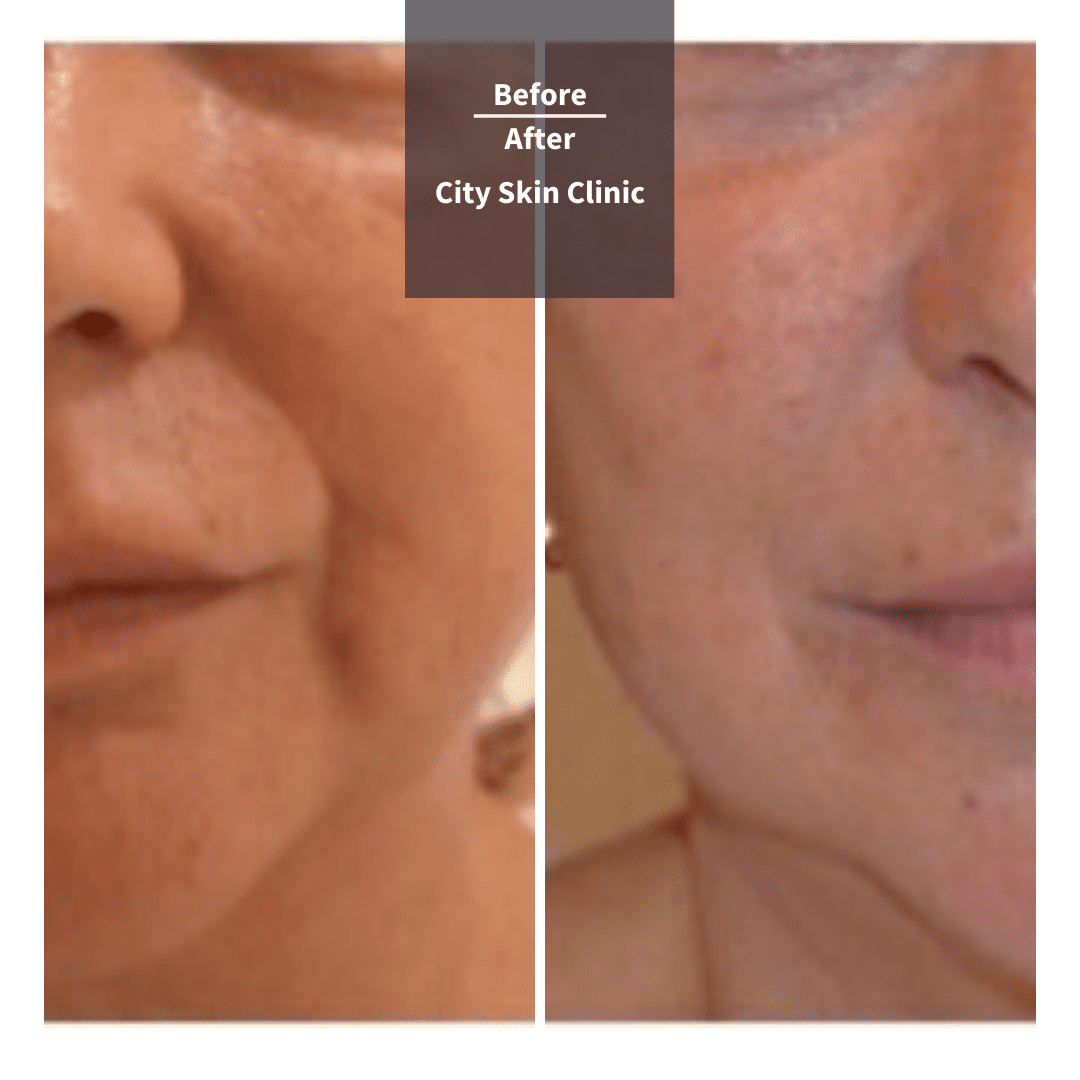 Before and after images for dermal fillers in London