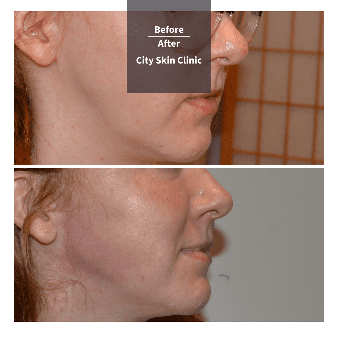 before and after images for Jawline Reshaping & Chin Enhancement with Juvederm Volux and Voluma in London