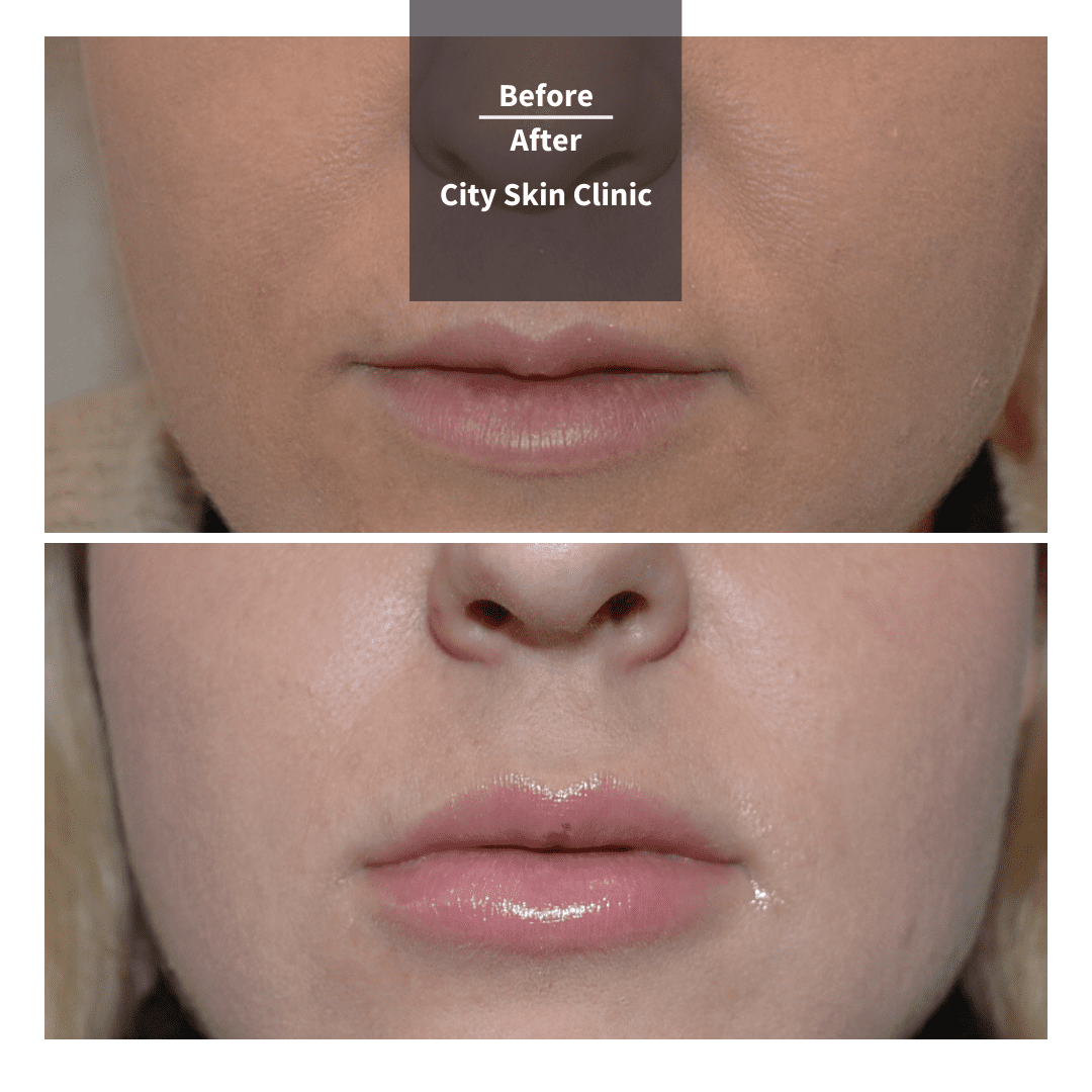 Before and after images for lip enhancment augmentation with lip fillers in London