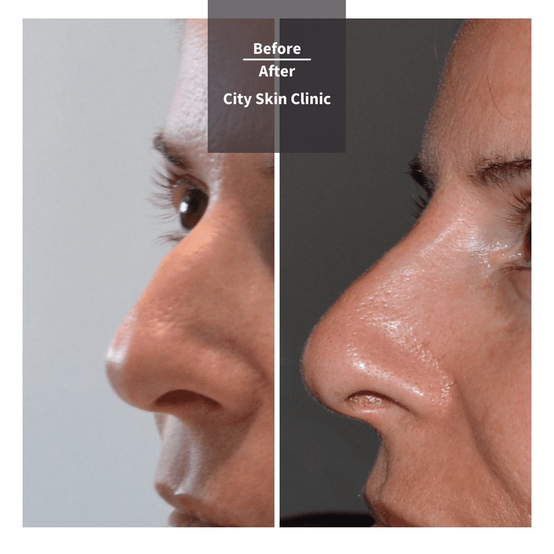 non surgical nose reshaping before and after