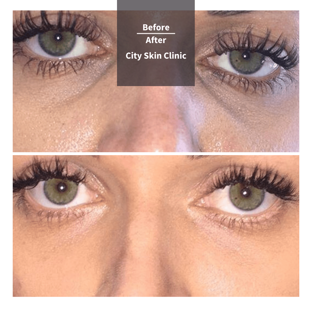 Before and after images of Tear Trough Fillers Under Eye Fillers Treatment in London