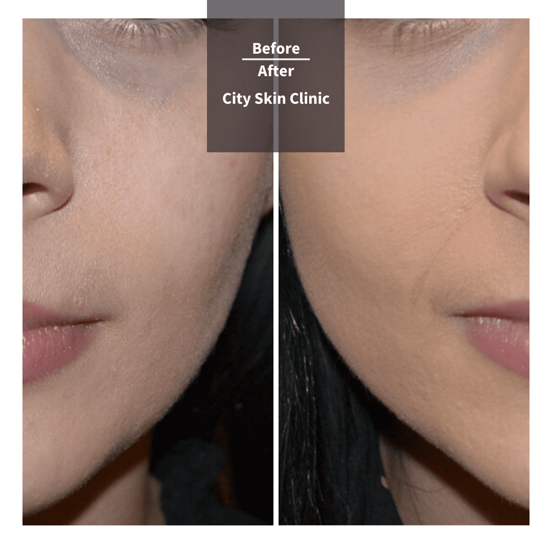 Before and after images for cheek and tear trough fillers in London