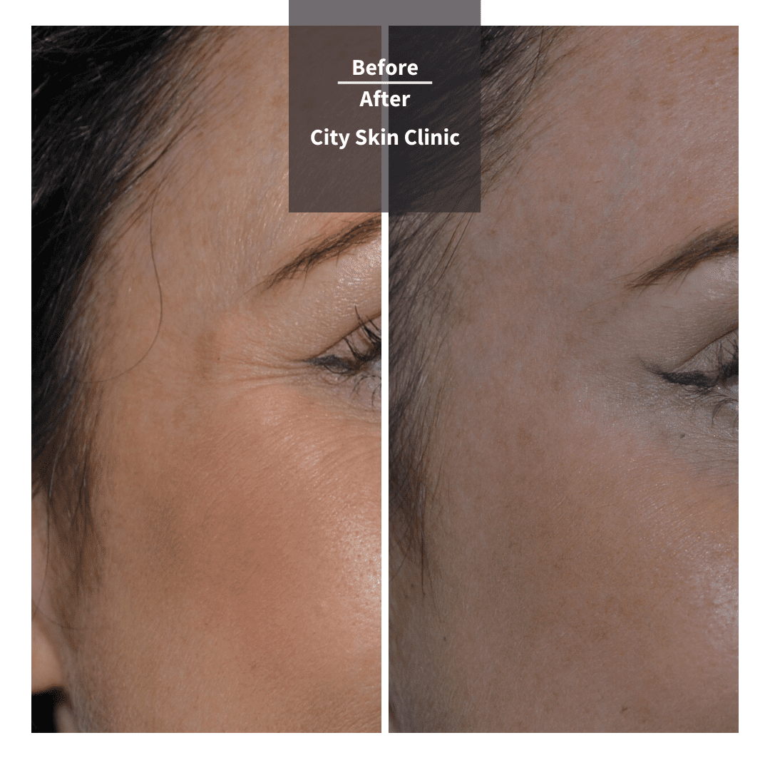 Before and after images for crows feet Botox anti-wrinkle injections