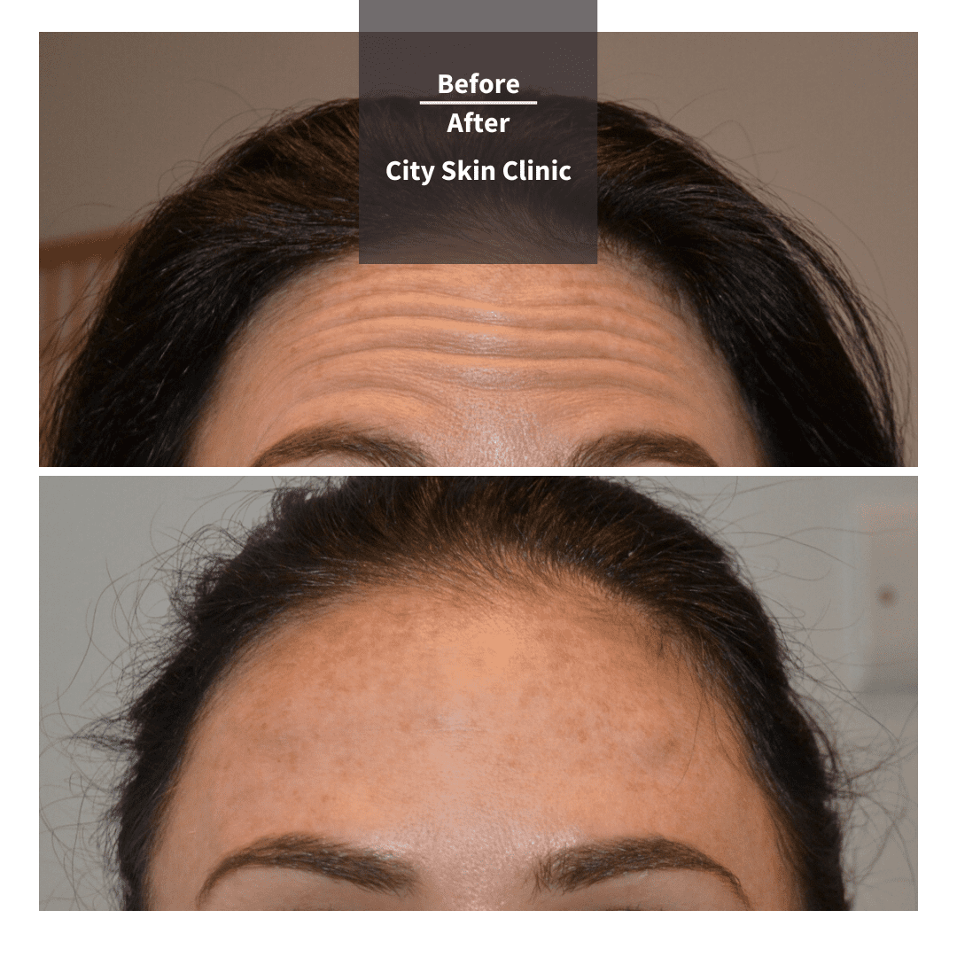 Before and after images for forehead lines Botox anti-wrinkle injections