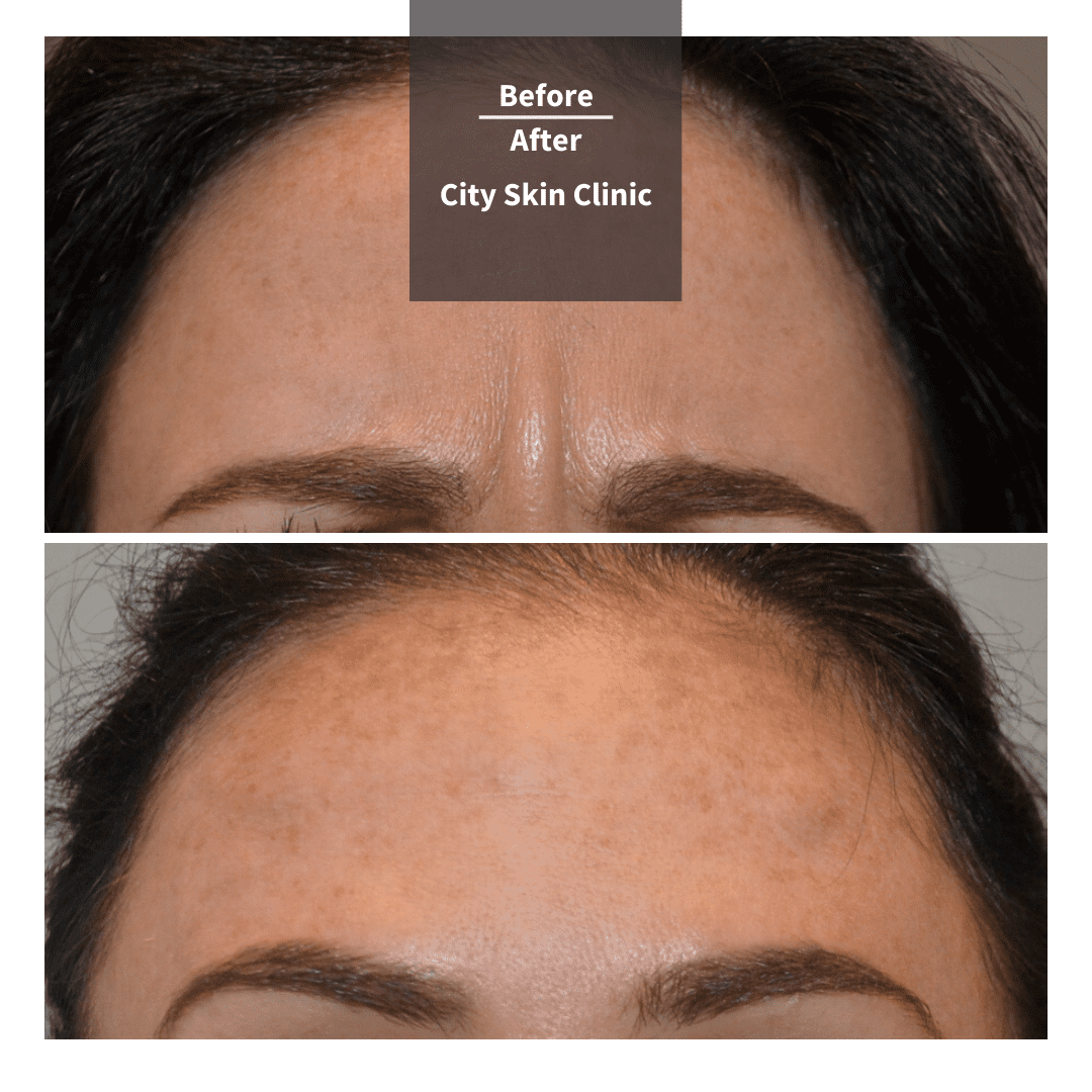 Before and after images for frown lines Botox anti-wrinkle injections
