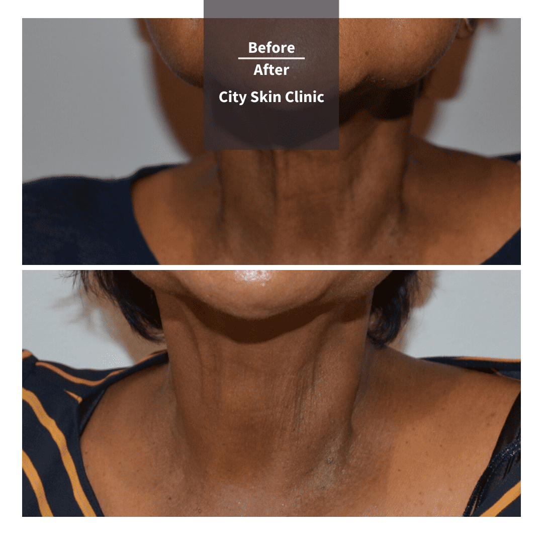 Before and after image of non surgical neck lift nefertiti neck lift in London