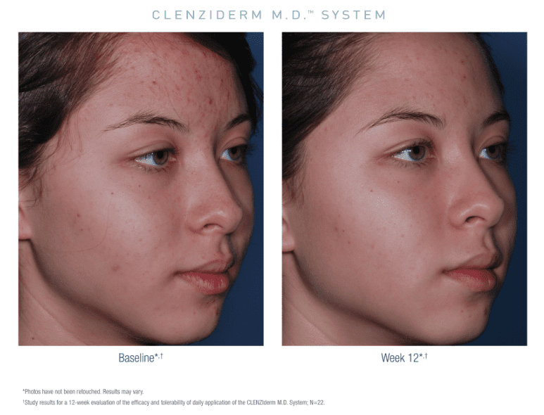 before and after Obagi clenziderm