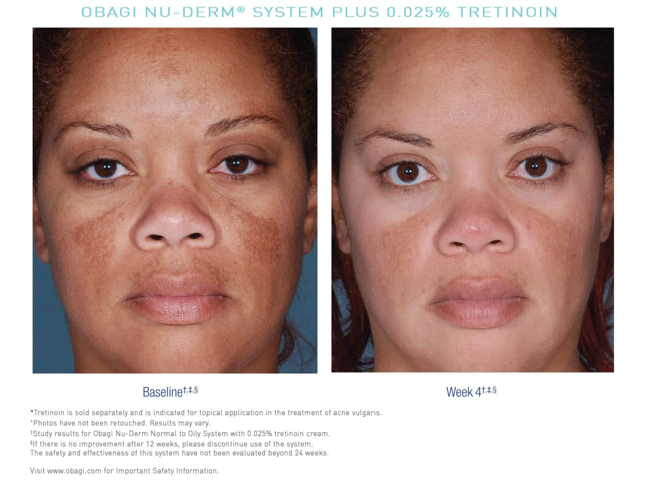 Before and after Obagi skincare online nu derm