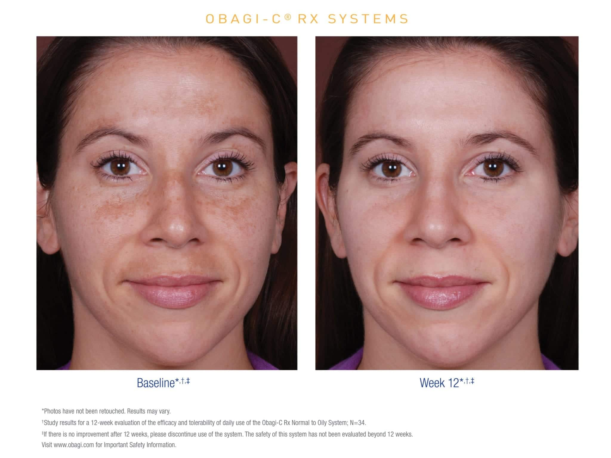 Obagi C Rx before and after