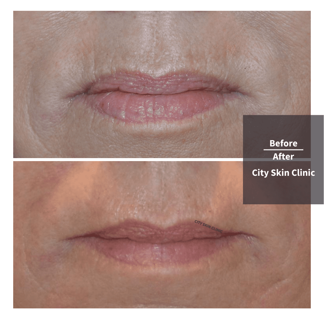 before and afters of smokers lines vertical lip lines treatment in london